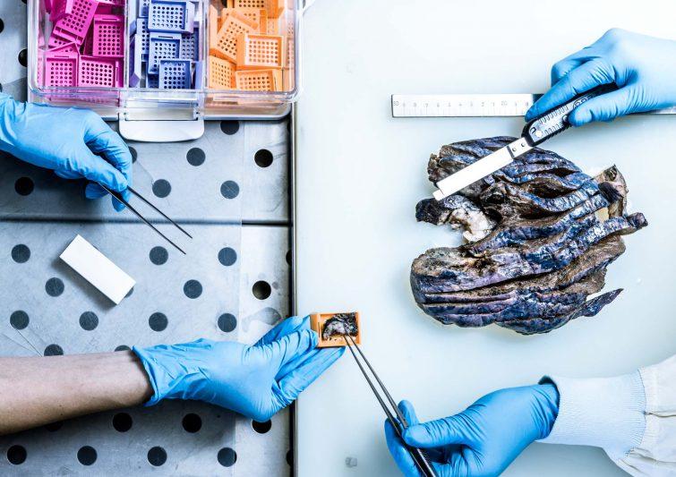 Lungenforschung: Deutsche Zentrum für Lungenforschung (DZL), Borstel | © Eric Shambroom Photography